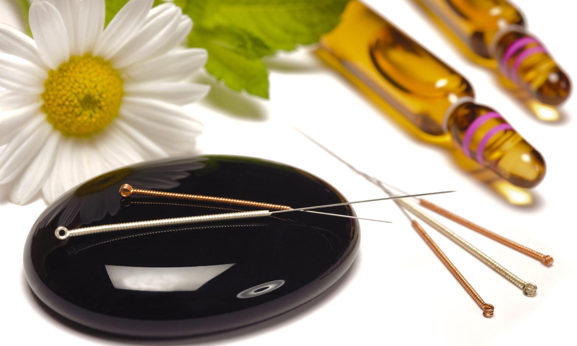 Alternative Medizin - Akupunktur- Magnetfeldtherapie - Schröpfen